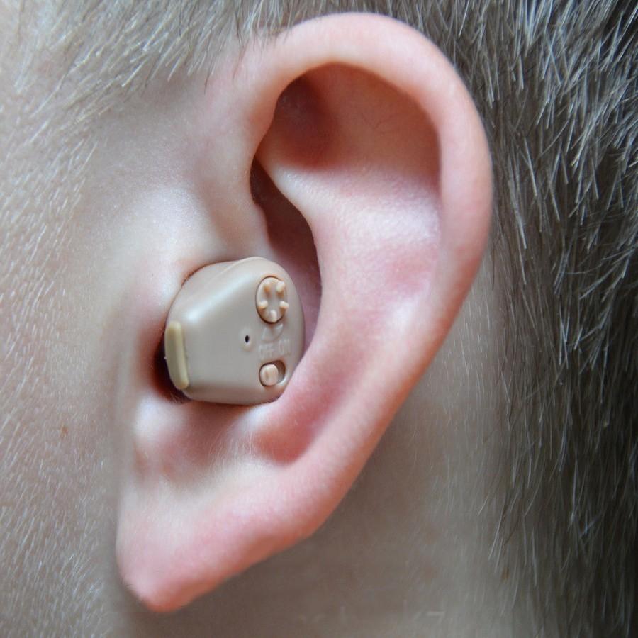 Слуховой аппарат Axon K-88Слуховые аппараты<br>Разве может чувствовать себя человек счастливо, если он не может насладиться пением птиц, без труда поговорить со своими близкими или послушать любимую музыку? Если вы столкнулись с проблемами со слухом, не стоит отчаиваться. Слуховой аппарат Axon K-88 позволит вам без хирургического вмешательства и вне зависимости от возраста прекрасно слышать мир вокруг себя!<br>