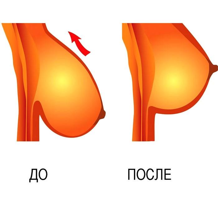 Наклейки для груди «невидимый бюстгальтер» Bare Lifts от MELEON