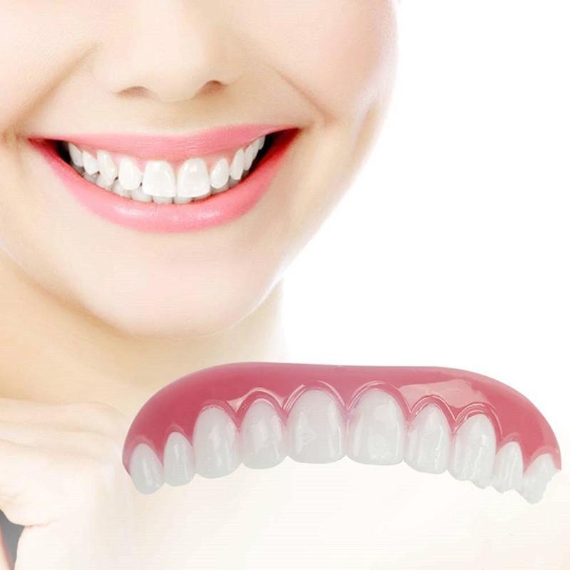 Виниры для коррекции зубовPerfect smile