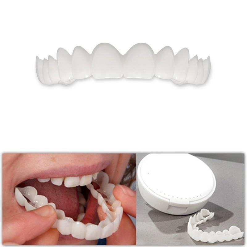 Виниры для эстетического протезирования зубов Snap On Smile