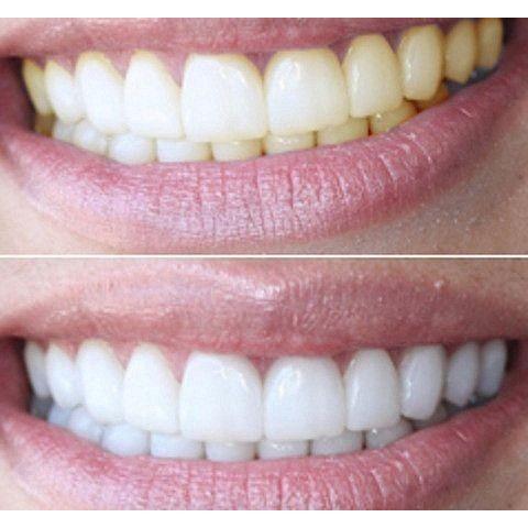 Щадящее отбеливание зубов лучшие способы, технология.