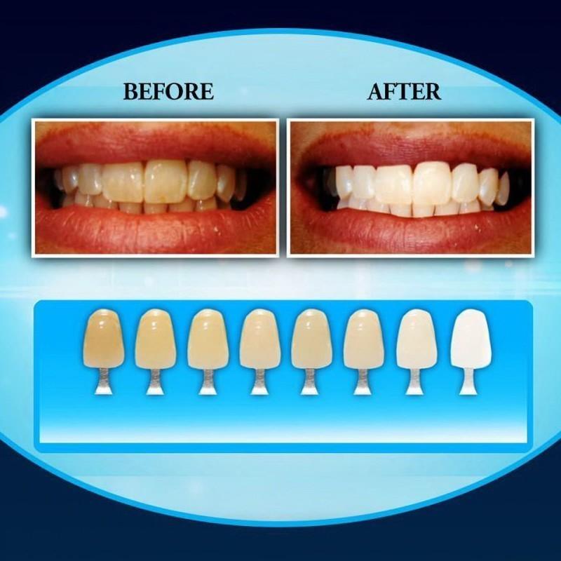 Система для отбеливания зубов 20 Minute Dental White, ,